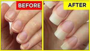 rubbing garlic on nails