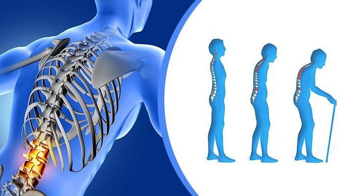 कैसे कमजोर होती हड्डियों को बनाए मजबूत?