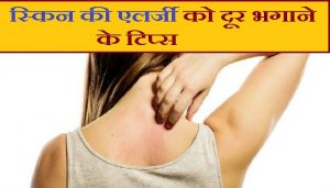 how to get rid of the skin allergy